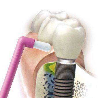 CURAPROX CS 1009 Single 9mm - jednopęczkowa szczoteczka dla osób z aparatami ortodontycznymi, implantami, mostami i